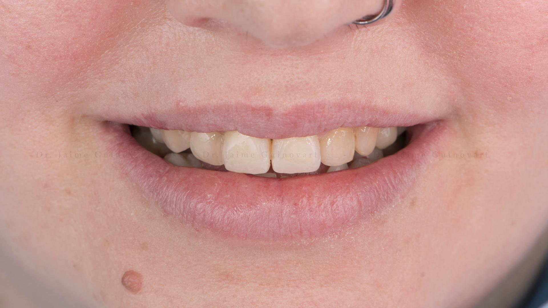 Desgaste Pre-Ortodoncia