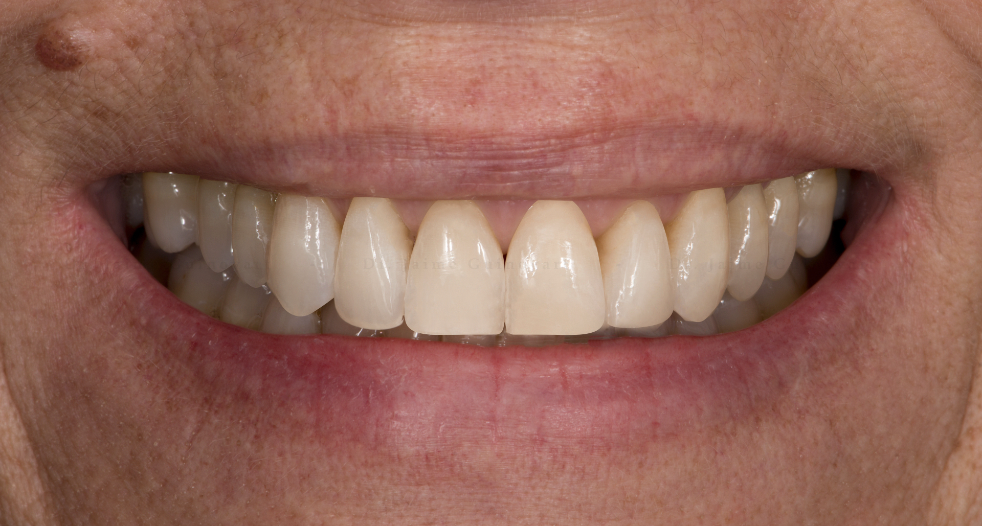 DSD para odontólogos